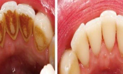 За сите кои се плашат од стоматолог, како сами да го отстраните забниот камен во домашни услови
