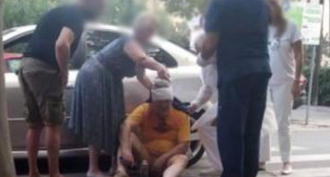 Фото од Љупчо Палевски веднаш откако бил пресретнат од двајца со кациги